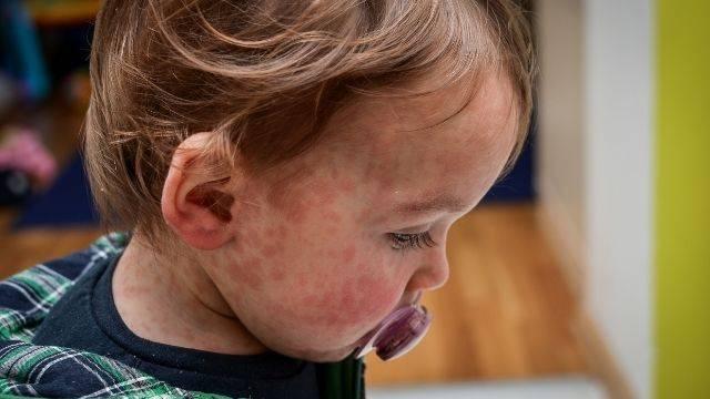 niño con manchas de alergia